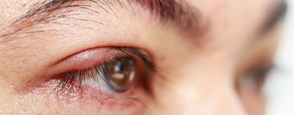 What is Blepharitis? | Goldsmith Webb Opticians Eye Health
