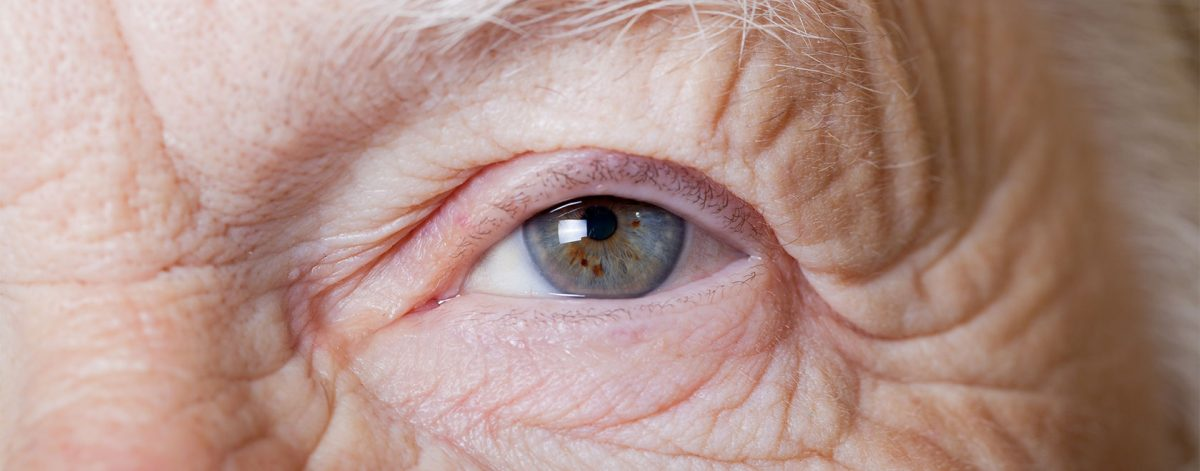 What are Cataracts? | Goldsmith Webb Opticians Eye Health